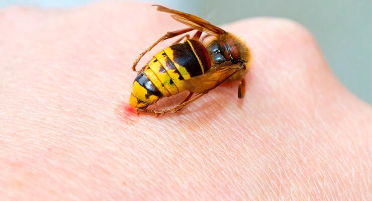 Укус осы: последствия